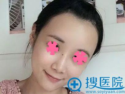 面部脂肪填充一个月恢复效果