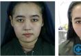 刚找上海首尔丽格范荣杰做完鼻修复真的很佩服院长做鼻子的技术