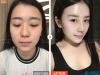 重庆珂琳雅韦小勇隆鼻案例分享:你和美女只差一个鼻子的距离
