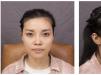 看朋友半年前找上海华美叶丽萍做的鼻子不错我也来做了个隆鼻