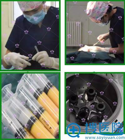 雅靓超微米乳脂面部填充手术过程