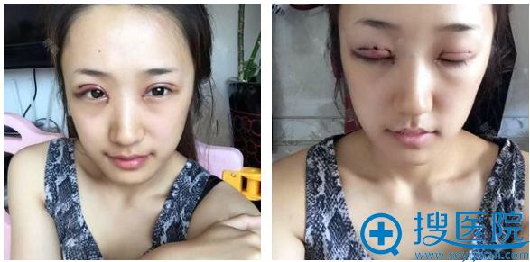 上海瑰康医疗美容医院王屏双眼皮案例术后即刻效果