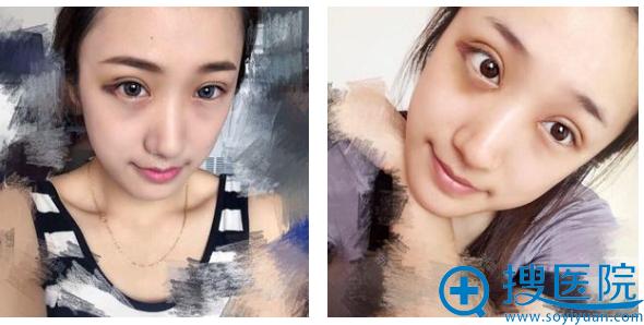 找上海瑰康医疗美容医院王屏做完双眼皮两周了