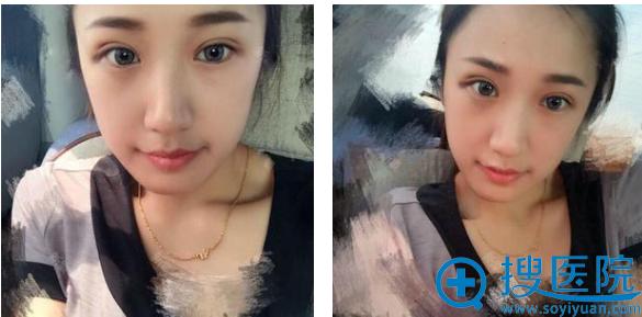 去上海瑰康王屏双眼皮术后二十天恢复照片