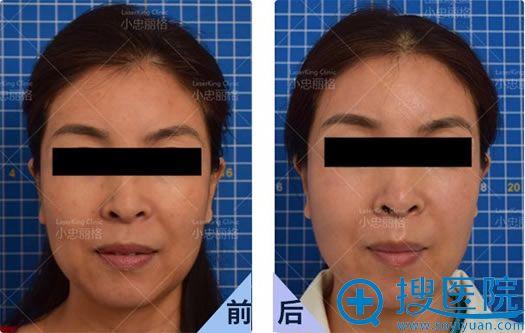 北京小忠丽格皮肤激光美肤案例