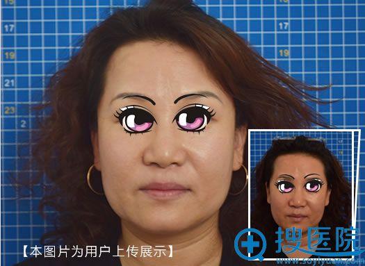 北京小忠丽格面部线雕抗衰案例