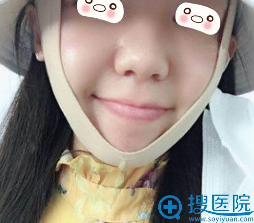 青岛华颜整形张庆医生射频溶脂瘦脸案例:第3天图