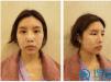 想要少女脸就学我去上海伊莱美找邱文苑做全脸自体脂肪填充吧