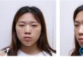 找上海时光整形医院郑志玉做的双眼皮太好看了还想再去做个鼻子