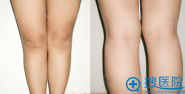 大腿吸脂手术前照片