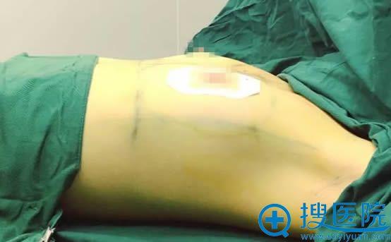爱臭美的我于6月29日去广州名韩整形医院让彭丽霞做了假体隆胸
