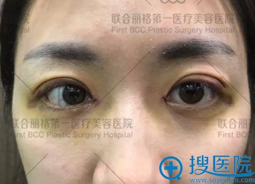 做完双眼皮和开眼角术后3天
