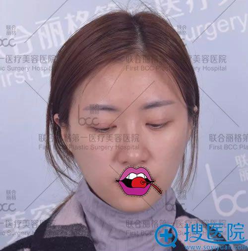 做完双眼皮术后20天疤痕照片