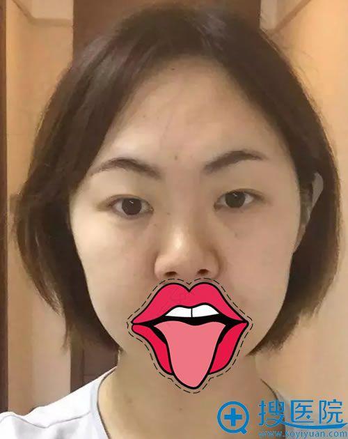 做隆鼻和双眼皮的手术前照片
