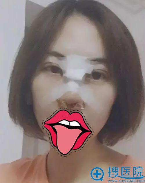刚做完双眼皮和隆鼻手术的照片