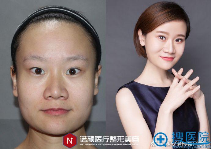 西安诺颜瘦脸案例