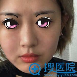 在北京叶子做隆鼻手术前