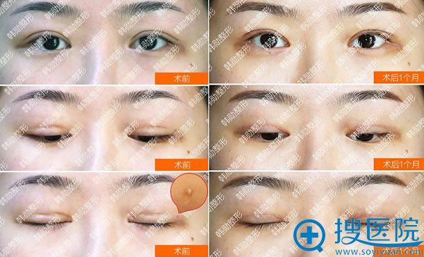 北京韩勋双眼皮失败疤痕修复案例