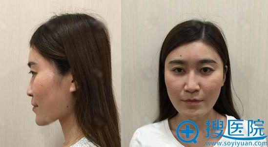 在北京叶美人做隆鼻手术前