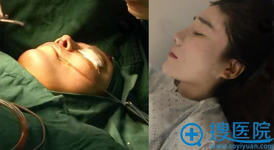 北京叶美人隆鼻手术过程和效果