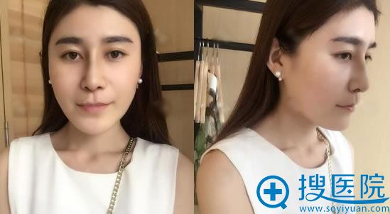 在北京叶美人做隆鼻手术10天后
