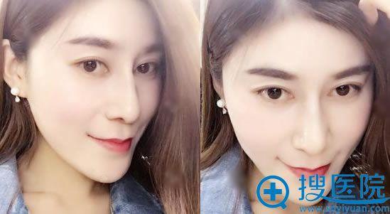 北京叶美人隆鼻术后30天效果