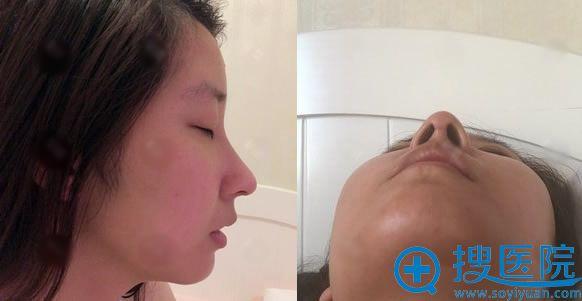 做假体垫下巴和隆鼻术后40天