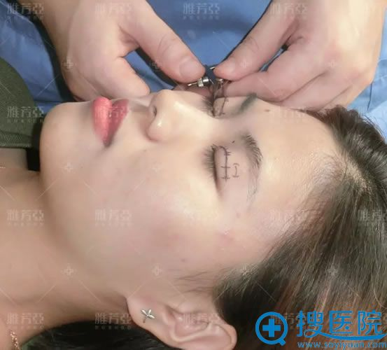 雅芳亚双眼皮画线过程