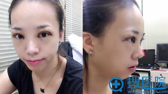 在北京华韩做双眼皮和开眼角5天后