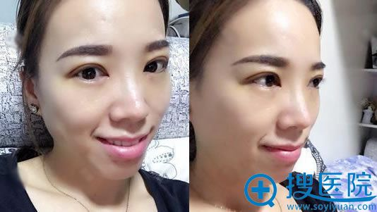 选择北京华韩做双眼皮术后10天