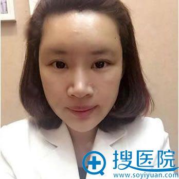在北京丽都做脂肪填充4天效果