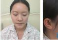 没想到只是找长沙亚韩整形医院郑京湘做了个隆鼻变化竟然这么大