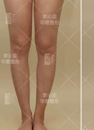 结合北京李沁奕华意O型腿矫正案例和价格表选择李沁奕院长正腿