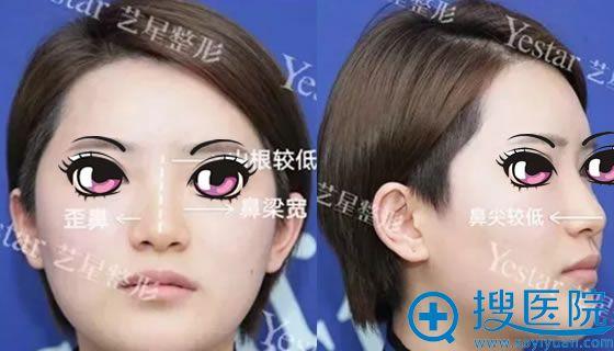 在北京艺星做肋骨隆鼻手术前