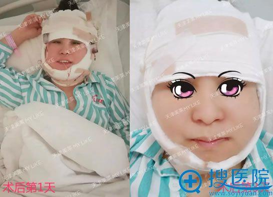 在天津美莱做下颌角术后3天