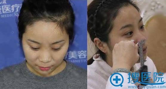 在北京壹加壹做隆鼻手术前