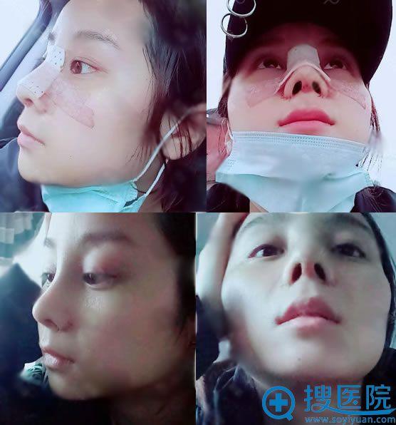 在北京壹加壹做隆鼻术后7天