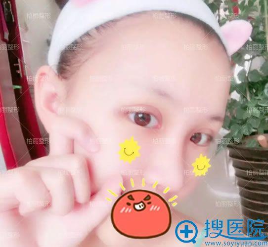 在北京柏丽做双眼皮和隆鼻10天后