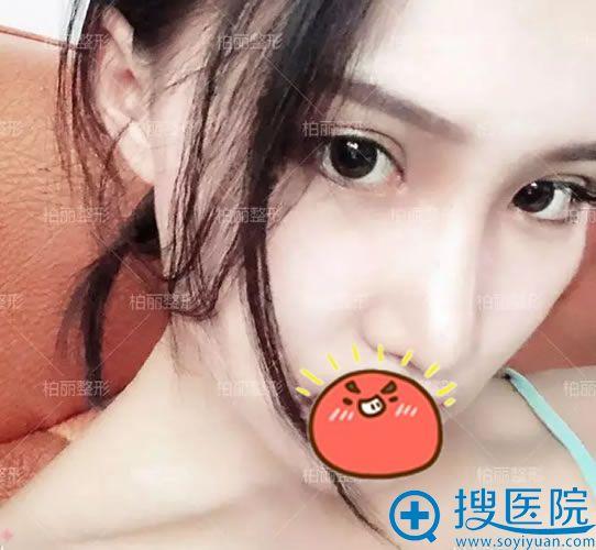 选择北京柏丽做隆鼻和双眼皮30天后