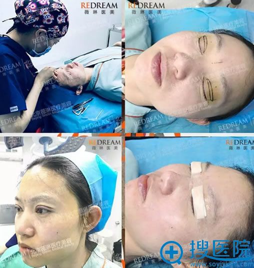 北京薇琳董香君双眼皮手术过程
