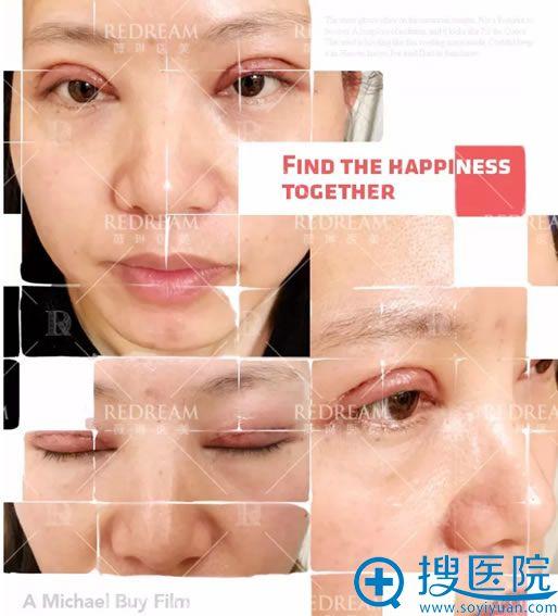做完双眼皮术后2天换药照片