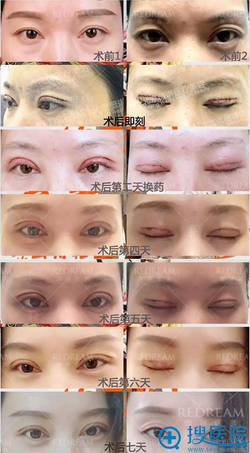 双眼皮手术7天恢复过程图片