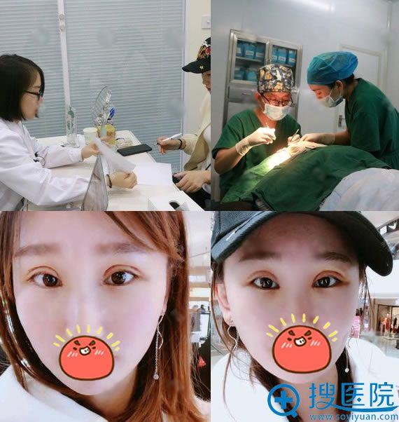 华悦府医疗美容双眼皮过程及7天效果