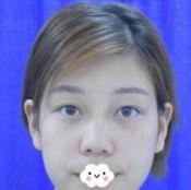 西安西京假体隆鼻效果怎么样?我的鼻综合整形是张曦医生做的