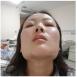 分享我在上海九院花5万元找徐梁医生做下颌角磨骨手术经历