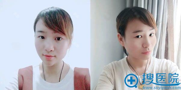 北京金燕子脂肪填充失败修复案例