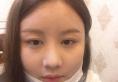 昨天下午找上海迪蔻整形医院原上海九院医生张忠溢做了假体隆鼻