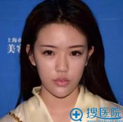 之前做过玻尿酸和线雕隆鼻这次来上海伊莱美找王世专做假体隆鼻