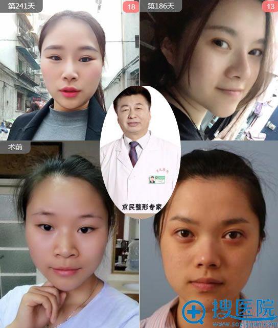在北京京民医院做隆鼻前参考案例