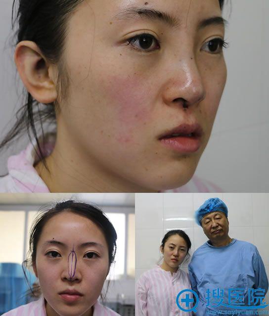 王志坚医生帮我做隆鼻即刻效果